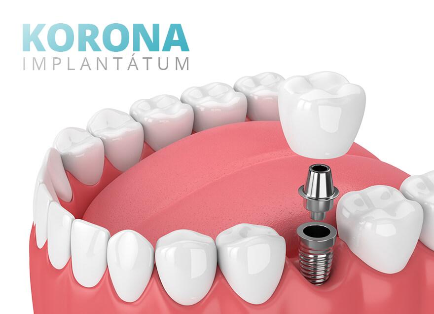 Implantátum - Korona
