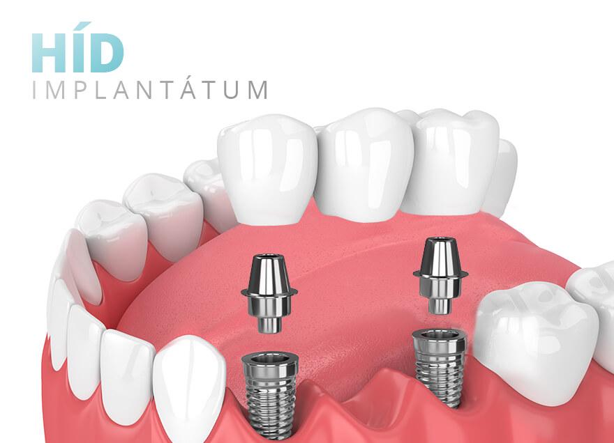 Implantátum - Híd