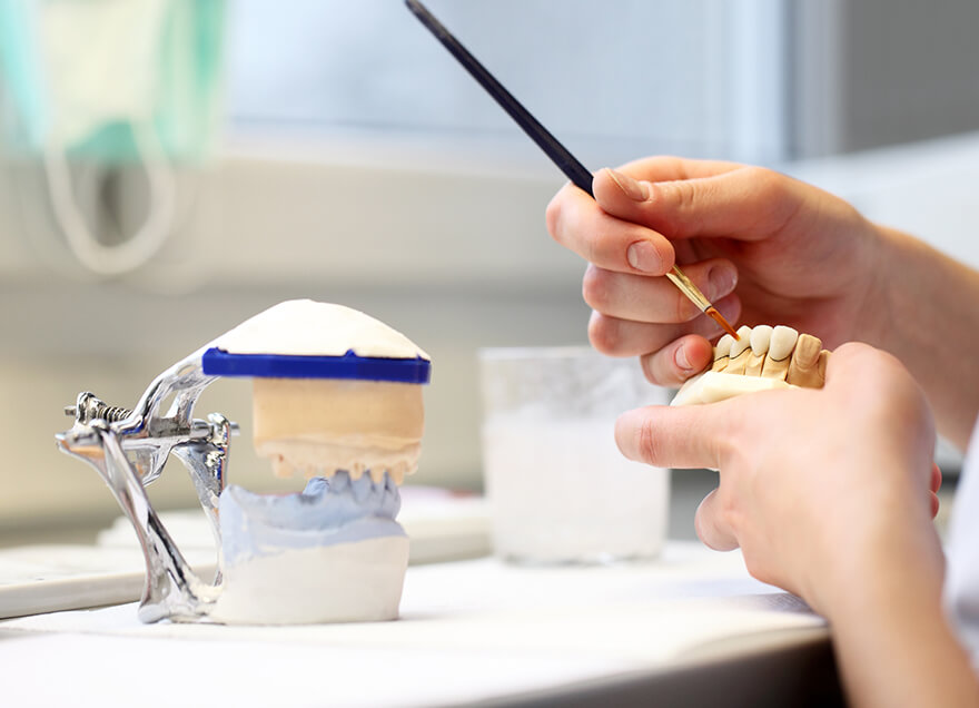 making implantation - dental laboratory