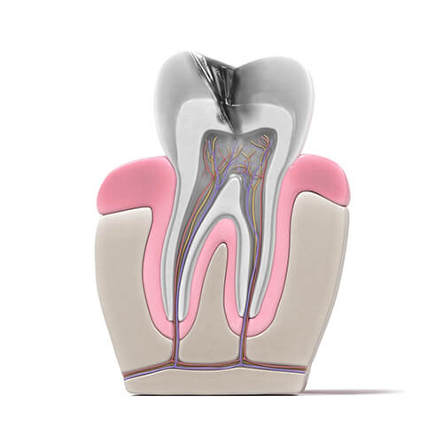 root canal procedure - 01