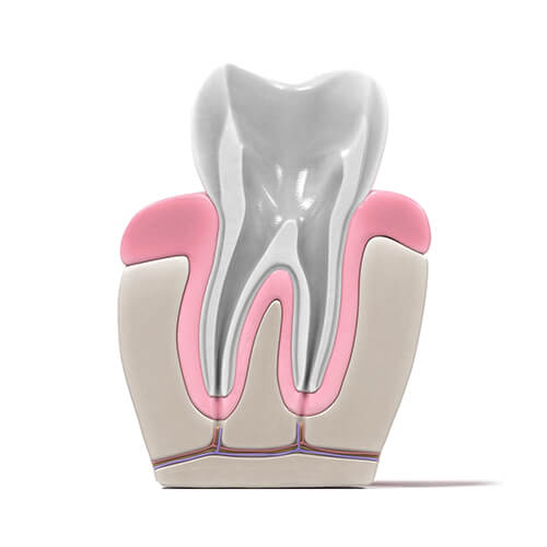 root canal procedure - 03