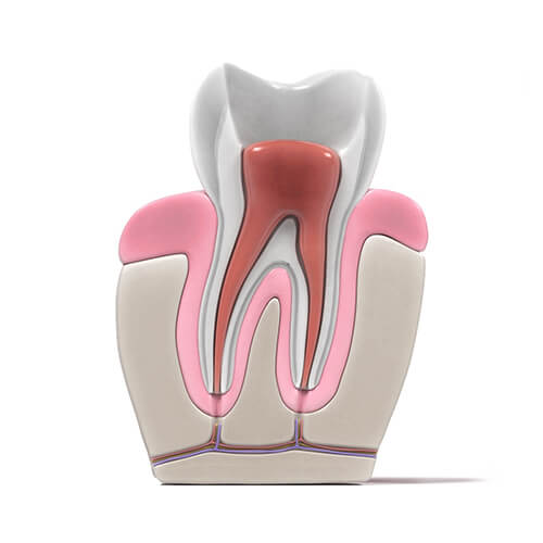root canal procedure - 04