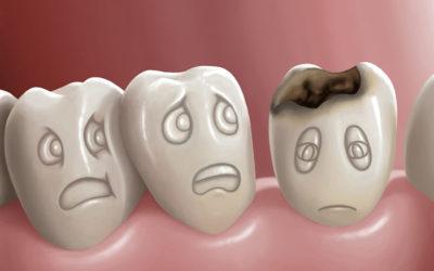 Ellenségünk: a fogszuvasodás